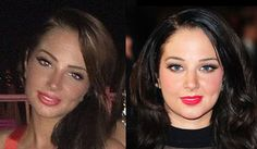 tulisa contostavlos before and after - Google Search