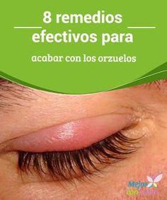 8 remedios efectivos para acabar con los orzuelos Los orzuelos son una infección que se da cerca del ojo causada por una bacteria y puede afectarnos de varias formas.