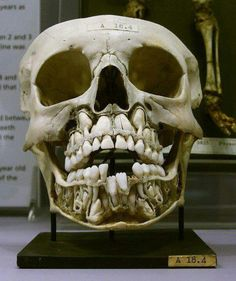 Child's skull before losing baby teeth.A newborn has all his baby teeth, then the adult teeth grow in at 2 years old. This skull of from a 6 year old. Who knew?