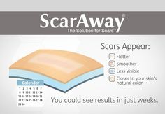 Improve the appearance of scars and prevent excessive scar formation with ScarAway. Scars appear flatter, smoother, less visible, closer to your skin's natural color.