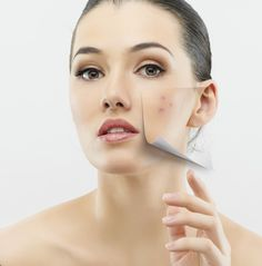 Home remedies for acne scars? How to treat pimples? How to get rid of pimples quickly? Fast simple home remedies for pimples. Best surprising home remedies to treat acne overnight. Natural homemade treatments for pimple. Remove Pimples Overnight, How To Get Rid Of Pimples, Pimple Scars, Acne Scars, Beauty Tips 101, Beauty Hacks, Acne Skin, Acne Prone Skin, Acne Face