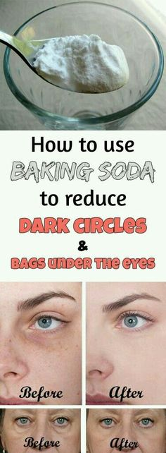 Beauty Tips How to use baking soda to reduce dark circles and bags under the eyes - Baking soda is definitely a must have in every home. Find out how you can use baking soda to make your life so much easier. Reduce Dark Circles, Dark Circles Under Eyes, Dark Spots Under Eyes, Under Eye Wrinkles, Dark Under Eye, Beauty Care, Beauty Skin, Juice Beauty, Tips Belleza