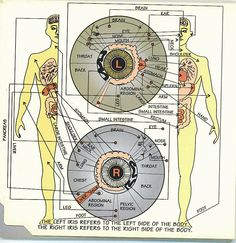 Iris Signs - Quick Iridology - ECAN International school of acupuncture - Learn Acupuncture in India. Next Course November 2016 Reiki, Iridology Chart, Arthritis, Tinnitus Symptoms, Drainage, Eye Chart, Acupuncture Points, Cognitive Behavioral Therapy, Alternative Health