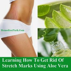 Learning How To Get Rid Of Stretch Marks Using Aloe Vera