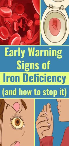 Iron Deficiency Symptoms That You Shouldn't Ignore - Helpful Tips 1 Foods For Brain Health, Health And Nutrition, Health Tips, Health Fitness, Health Facts, Women's Health, Iron Deficiency Symptoms, Signs Of Iron Deficiency, Honey Benefits