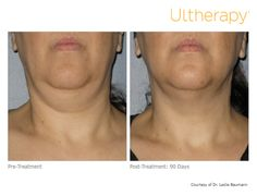 DYK: For most patients, Ultherapy® provides results in a single treatment. Check out this before and after photo, 90 day post-surgery.   *The non-invasive Ultherapy® procedure is U.S. FDA-cleared to lift skin on the neck, on the eyebrow and under the chin as well as to improve lines and wrinkles on the décolletage. The most common side effects reported in clinical trials were redness, swelling, pain, and transient nerve effects. For full product and safety information, visit…