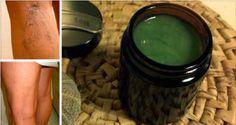 Un remède efficace contre les varices. Comment se débarrasser des varices ? Des astuces naturelles pour atténuer les varices.