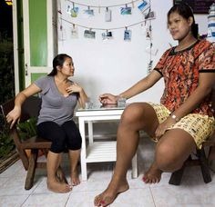 """Malee Duangdee (Thailand) Malee Duangdee was the tallest woman in Thailand and the second tallest woman in Asia. Her height was 6'10"""". Unfortunately, she died at a young age in August 2016 due to a heart attack."""