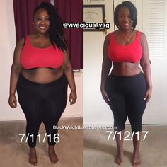After years of yo-yo dieting and trying various programs and plans for releasing. After years of yo-yo dieting and trying various programs and plans for releasing the weight she decided to try Gastric Sleeve surgery. Check out her s. Weight Loss For Women, Weight Loss Goals, Fast Weight Loss, Weight Loss Program, Weight Loss Journey, Fat Fast, Before After Weight Loss, Before And After Weightloss, Fitness Motivation