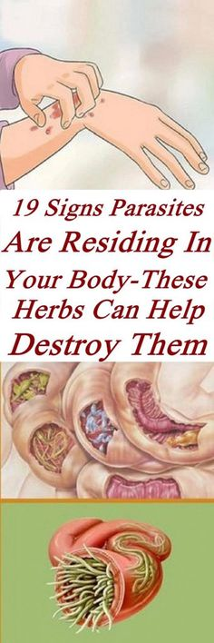 19 Signs Parasites Are Residing In Your Body-These Herbs Can Help Destroy Them #health #life #parasites # herbs