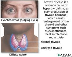 17 Best Thyroid Eye Disease Images Thyroid Graves Disease Disease