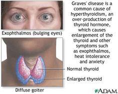 Hyperthyroidism, Graves' Disease, and Thyroid Eye Disease. http://www.ncbi.nlm.nih.gov/pubmedhealth/PMH0001396/ http://en.wikipedia.org/wiki/Graves'_disease http://en.wikipedia.org/wiki/Graves%27_ophthalmopathy This is what I have...