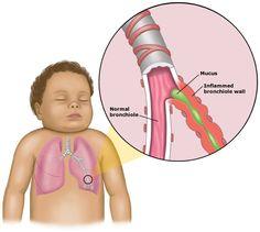 Bronchiolitis: A toddler illness with no vaccine.