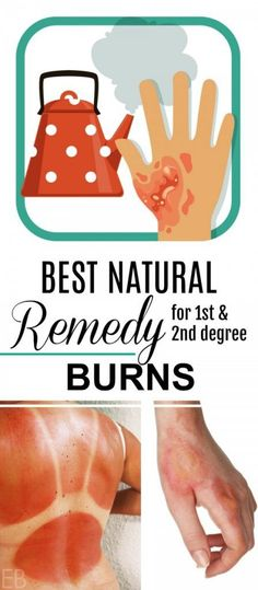 Learn the best home remedy for and degree burns, found in most home kitchens. of all burns happen in the home, most of these in the kitchen due to flame, scalding injuries (like steam or hot coffee), or electrical devices (like ovens and irons). Natural Health Remedies, Natural Cures, Herbal Remedies, Natural Beauty, Home Remedies For Burns, 2nd Degree Burns, Burn Relief, Ovens, Home Remedies