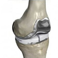 Three-compartment knee prosthesis (cemented)