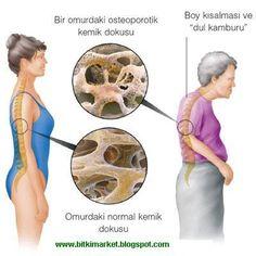 Pınar alacalı, pek çok kişinin muzdarip olduğu kemik erimesi hastalığına karşı fayda sağlayan doğal önerilerini, 14 Şubat Pazar günü, Serde...