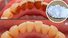 5 natürliche Mittel zur Entfernung von Zahnbelag – Super Rezepte