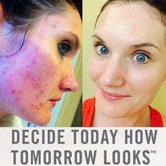 These are REAL results. #UNBLEMISH