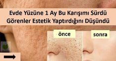 Sadece Karışımdan Sürdü, Görenler Estetik Yaptırdığını Zannetti When used regularly, it corrects enlarged pores in 1 month. Close is not the solution! By focusing on the solution, the factors that cause the expansion of the pores and what we can do Homemade Skin Care, Diy Skin Care, Tips & Tricks, Puffy Eyes, Healthy Skin Care, Acne Skin, Good Skin, Sensitive Skin, Health And Beauty