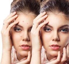 7 tratamentos caseiros para acabar com espinhas e cravos