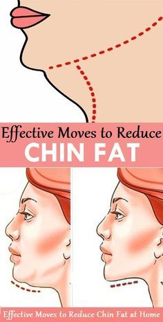 Effective Exercises to Reduce Chin Fat..