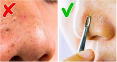 4 ways to effectively remove and avoid blackheads. 4 ways to effectively remove and avoid blackheads diy beauty face, 5 minute crafts videos Face Mask For Blackheads, Get Rid Of Blackheads, Pimples, Skin Tips, Skin Care Tips, Diy Beauty, Beauty Hacks, Skincare Blog, Face Treatment