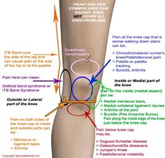 knee pain chart - where does it hurt and what is it?