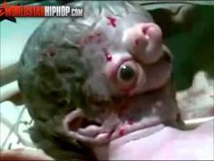 Chernobyl + DU weapons mutations, cancers and deformities - Google Search