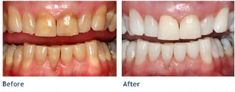 Cosmetic Dentist in Las Vegas Image - Mundpflege & Zahnaufhellung Teeth Whitening System, Best Teeth Whitening, Whitening Kit, Chester, Las Vegas Images, Botox Injections, Smile Teeth, Stained Teeth, Health Tips
