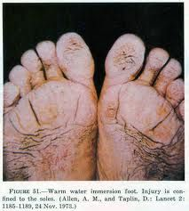 trench foot...