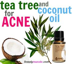 Tea Tree Oil and Coconut Oil for Acne - How to Use with 3 Recipes