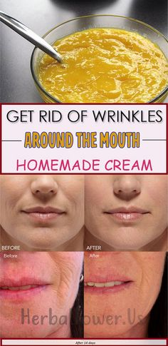 Get Rid Of Wrinkles Around The Mouth. Homemade Cream