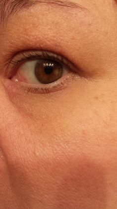 this is what 2 months of Nerium AD can do for your eyes