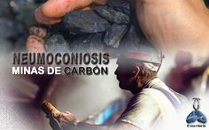 Si hay un trabajo de verdadero riesgo para los pulmones, es el de la minería. https://www.facebook.com/JohannyVargasdra
