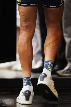 Hoogerland's scars...a car knocked him into a barbed wire fence
