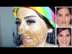 Cilt Lekeleri Ve Sivilce İzlerine Son Veren Doğal Maske - YouTube