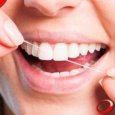 Los implantes dentales no sólo se parecen a los dientes naturales en el aspecto, sino que también exigen una higiene oral correcta. El objetivo es garantizar su durabilidad a través de algunos cuidados básicos como un cepillado adecuado, el uso del hilo dental y, en algunos casos, enjuagues bucales. ........................................................................................ Concierta YA tu consulta SIN NINGÚN COMPROMISO: >  http://www.pnid.es/