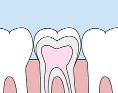HAWLEY DENTAL ASSOCIATIAN  21752 State Rd 54, LUTZ 33549 Dental sealants are a plastic resin that bonds and hardens in the deep grooves on your tooth's surface. When a tooth is sealed, the tiny grooves become smooth, and are less likely to harbor plaque. With sealants, brushing your teeth becomes easier and more effective against tooth decay. Sealants are typically applied to children's teeth as a preventive measure after the permanent teeth have erupted as a way to prevent tooth decay.