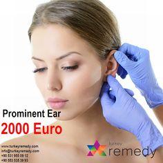 Prominent Ear