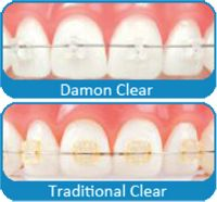 Sandman of Bergen Orthodontics is your Bergen, NJ orthodontist providing braces for children, teens, and adults. Damon Braces, Braces Before And After, Invisible Braces, Clear Aligners, Loose Tooth, Brace Face, Chino Hills, White Nails