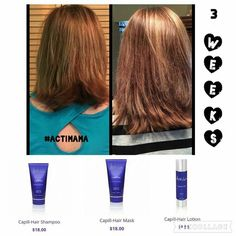 If you haven't tried our Capill-hair, you're missing out! Look at that growth! #somuchgrowth #hair #beauty #loveyourlocks #actiglobal #uk #usa #canada #flashsale