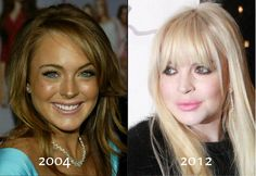 She's only 25!  Hard partying and excessive fillers have taken their toll.  Lindsay Lohan
