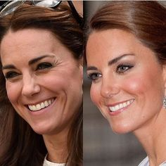 Here is an example of how Botox and fillers can help you age backwards and still look natural. In the left image, from 2012, Kate Middleton's crows feet, forehead wrinkles, and undereye hollows have aged her face. In the right image, taken more recently in 2016, her wrinkles are gone, her complexion is smooth, and she looks like a more radiant and gorgeous version of herself. Injectables and medical-grade skincare can keep you looking healthy, natural, and youthful even as the years fly by…