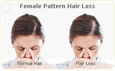 Hair loss during menopause is usually a direct effect of fluctuating hormone levels. Two main hormones are involved in hair growth: estrogen and testosterone. In estrogenic alopecia, the most common type of hair loss for menopausal women, this loss is directly attributed to a fall in estrogen levels. Estrogen helps hair grow faster, and stay on the head for a longer duration, leading to thicker, healthier hair.