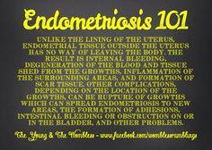 Endometriosis 101