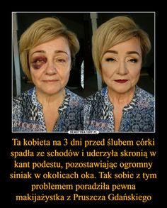 Ta kobieta na 3 dni przed ślubem córki spadła ze schodów i uderzyła skronią w kant podestu, pozostawiając ogromny siniak w okolicach oka. Tak sobie z tym problemem poradziła pewna makijażystka z Pruszcza Gdańskiego –