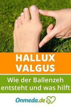 Hallux valgus: ¿que ayuda si se aprietan los zapatos?de - Hallux valgus a menudo es causado por calzado incorrecto. Bunion Exercises, Bunion Remedies, Tailors Bunion, Bunion Surgery, Gewichtsverlust Motivation, Health Quotes, Healthy Tips, Pain Relief, Body Care