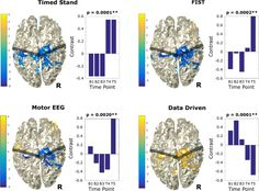 [ARTICLE] Portable neuromodulation induces neuroplasticity to re-activate motor function recovery from brain injury: a high-density MEG case study - Full Text Corpus Callosum, Canadian Soldiers, White Matter, Magnetic Resonance Imaging, Beginning Of Year, Cranial Nerves, Foot Drop, Neuroplasticity, Traumatic Brain Injury