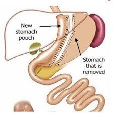 Laparoscopic Gallbladder surgery complications - Broowaha