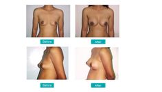 Breast Reduction- A Surgery That Can Change Your Life http://enhance-clinics.blogspot.in/2014/05/breast-reduction-surgery-that-can.html